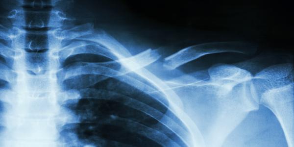 Magnesium for bone fractures