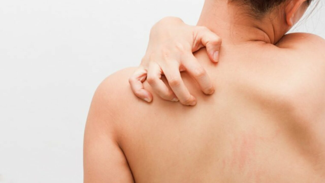 skin-problems-role-elevated-insulin-levels