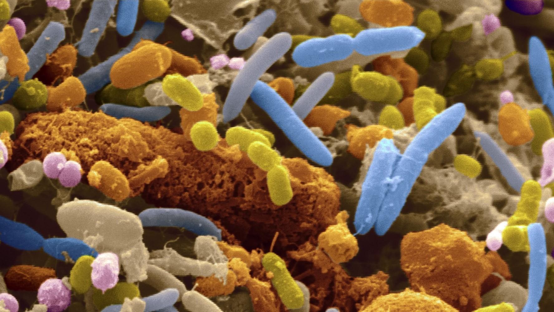 gut-bacteria-linked-type-2-diabetes